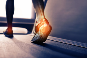 Physical Therapy for Tendonitis vs Tendonosis