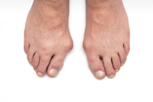 Foot pain, bunion.