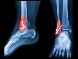 Ankle fracture. Ankle pain